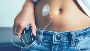 Insulinpumpe in der Tasche