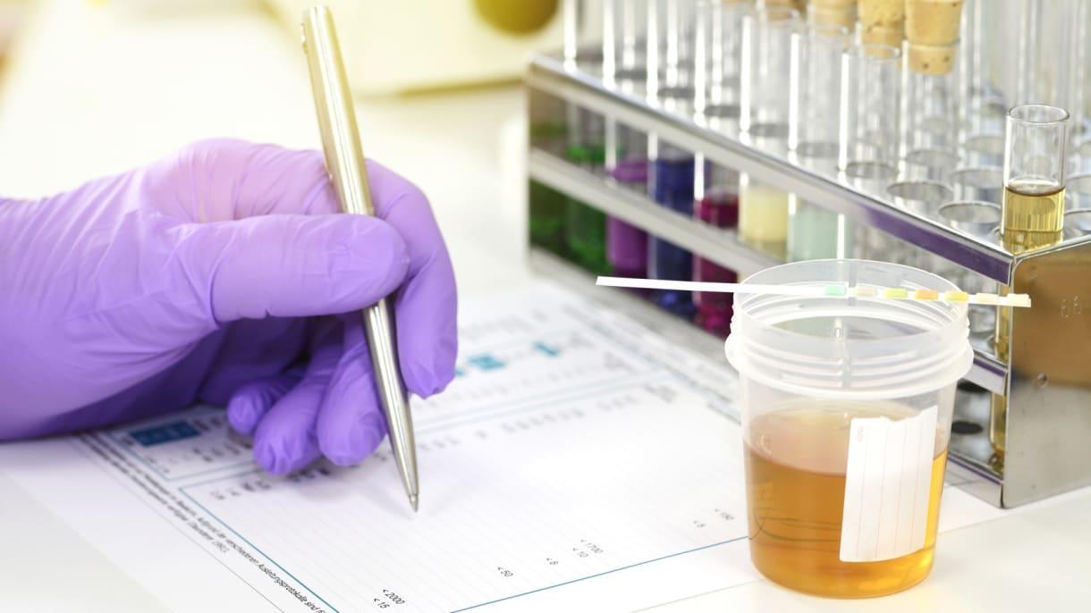 Chemielabor, Reagenzgläser