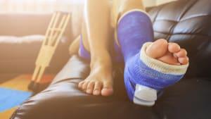 Frau mit gebrochenem Bein liegt auf der Couch